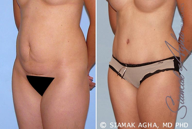Orange County Newport Beach Tummy Tuck 26 Front Left View