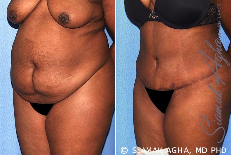 Orange County Newport Beach Tummy Tuck 29 Front Left View