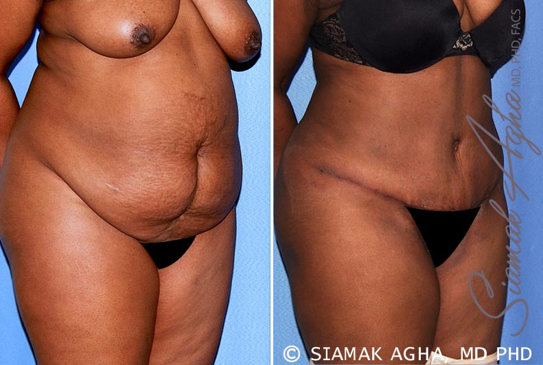 Orange County Newport Beach Tummy Tuck 29 Front Right View