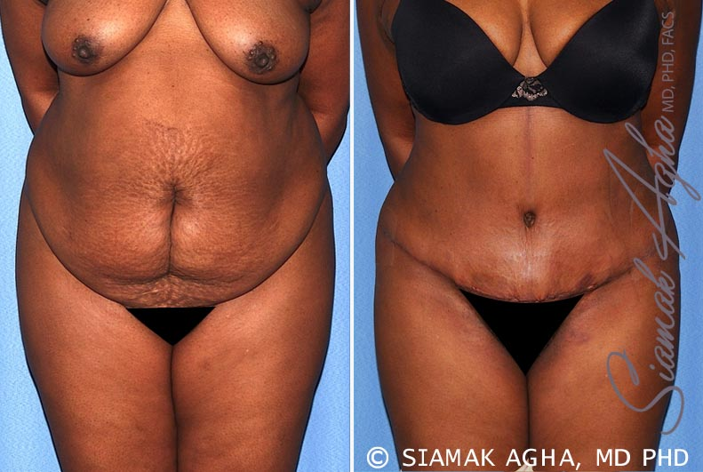 Orange County Newport Beach Tummy Tuck 29 Front View