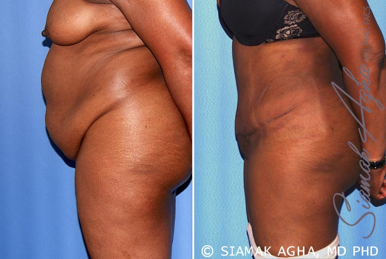 Orange County Newport Beach Tummy Tuck 29 Left View