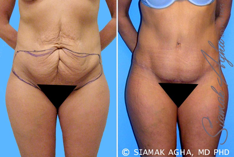Orange County Newport Beach Tummy Tuck Patient 3