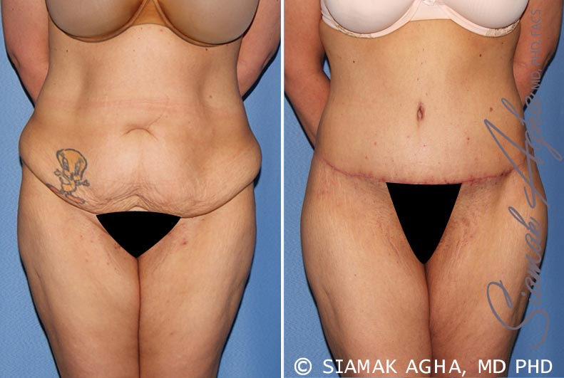 Orange County Newport Beach Tummy Tuck Patient 30