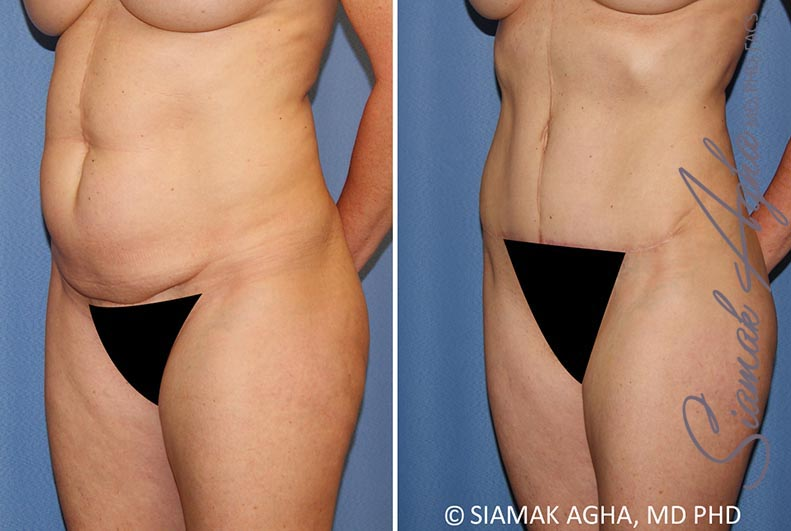 Orange County Newport Beach Tummy Tuck 35 Front Left View