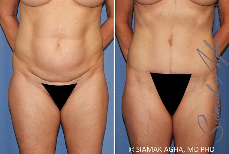 Orange County Newport Beach Tummy Tuck Patient 35