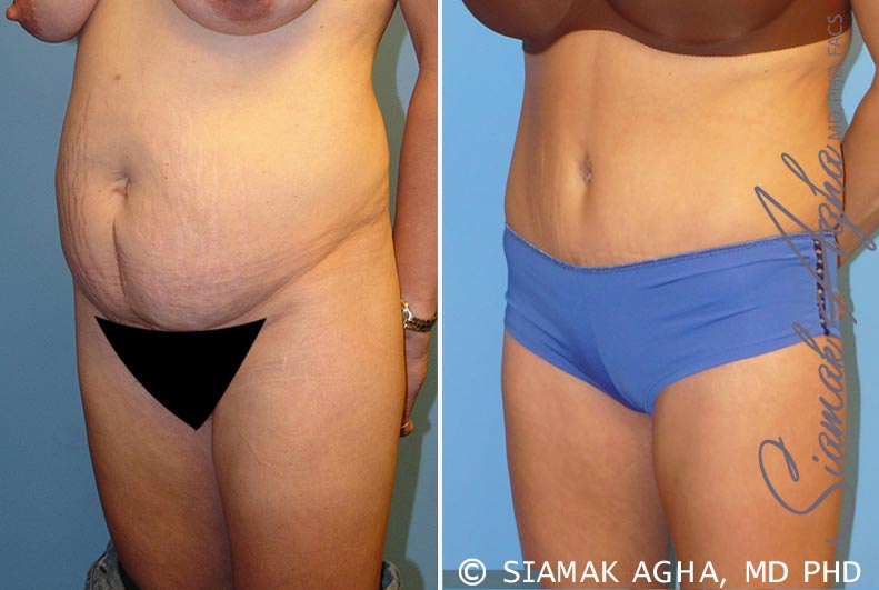 Orange County Newport Beach Tummy Tuck Patient 5