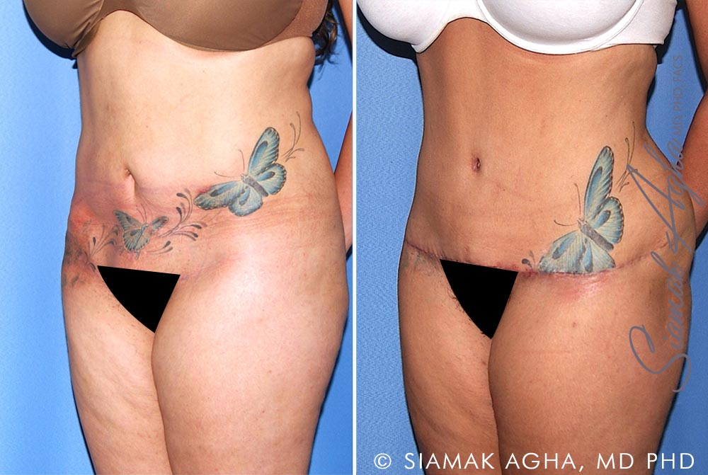 Orange County Newport Beach Tummy Tuck Revision 10 Front Left View