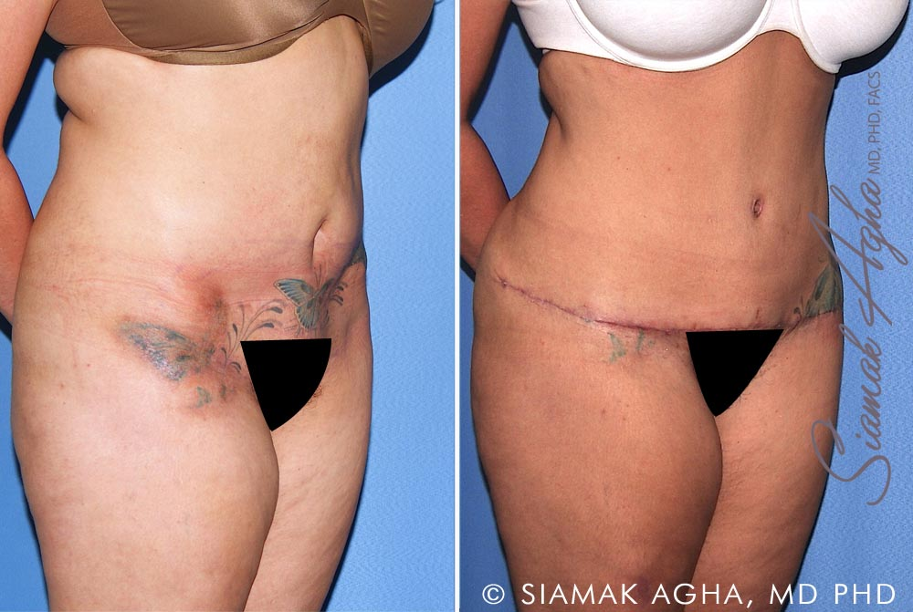 Orange County Newport Beach Tummy Tuck Revision 10 Front Right View