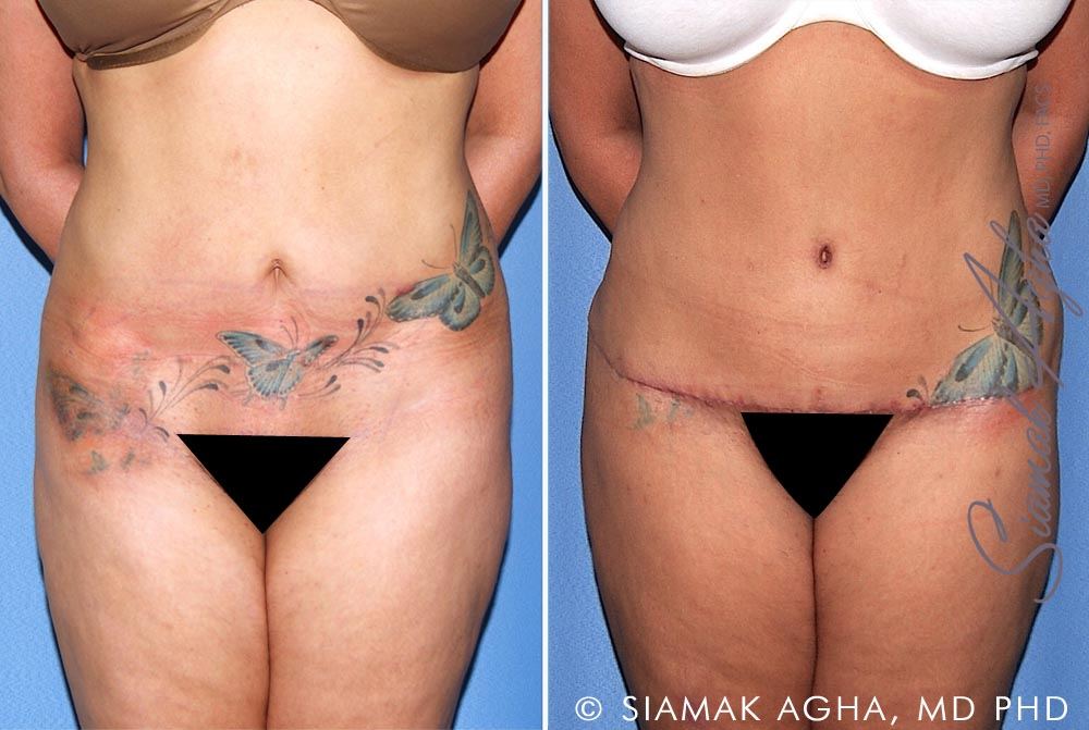 Orange County Newport Beach Tummy Tuck Revision 10 Front View