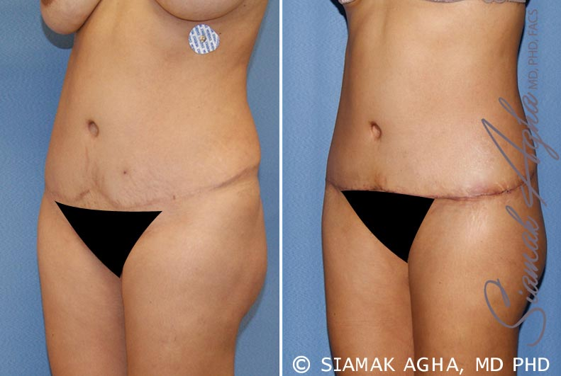 Orange County Newport Beach Tummy Tuck Revision 6 Front Left View
