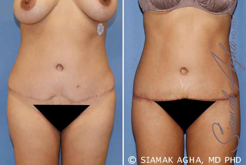 Orange County Newport Beach Tummy Tuck Revision 6 Front View