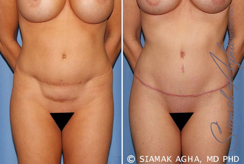 Orange County Newport Beach Tummy Tuck Revision 8 Front Alt View