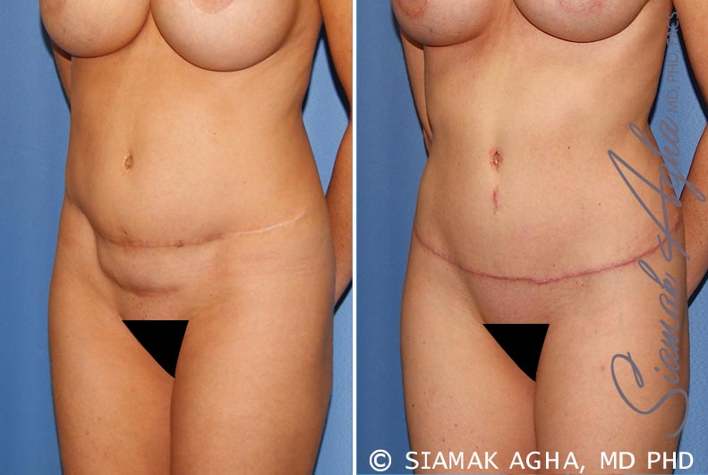 Orange County Newport Beach Tummy Tuck Revision 8 Front Left View