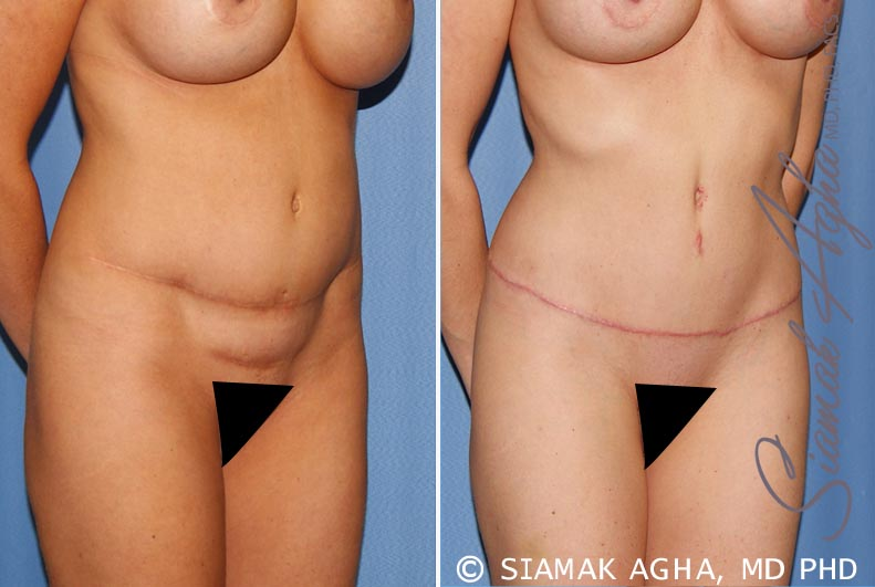 Orange County Newport Beach Tummy Tuck Revision 8 Front Right View