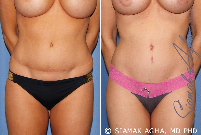 Orange County Newport Beach Tummy Tuck Revision 8 Front View