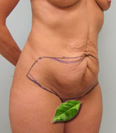 Typical Tummy Tuck Patients Newport Beach - Image 2
