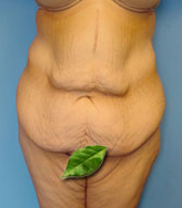 Typical Tummy Tuck Patients Newport Beach - Image 4