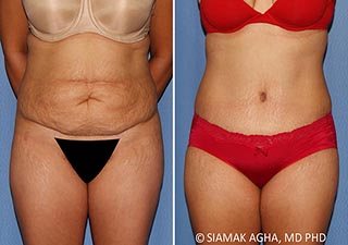 Orange County Tummy Tuck Newport Beach Patient 34