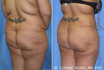 Orange County Newport Beach Tummy Tuck Revision 5 Back Right View