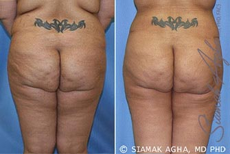 Orange County Newport Beach Tummy Tuck Revision 5 Back View