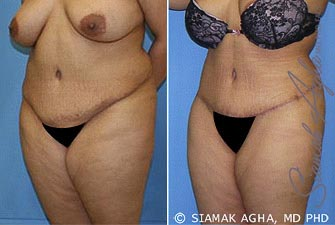 Orange County Newport Beach Tummy Tuck Revision 5 Front Left View
