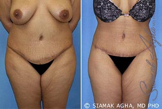 Orange County Newport Beach Tummy Tuck Revision 5 Front View