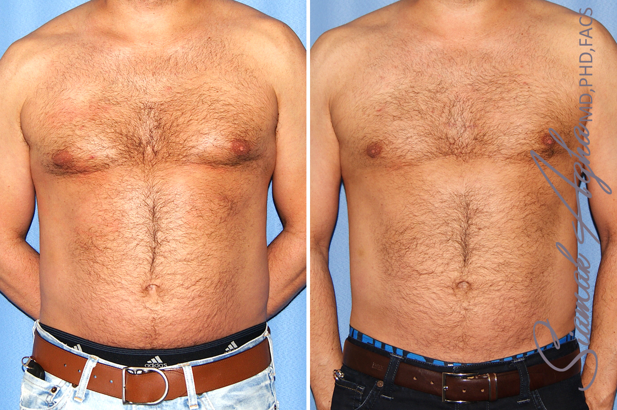 Orange County Newport Beach Male Male Liposuction 21 Front View