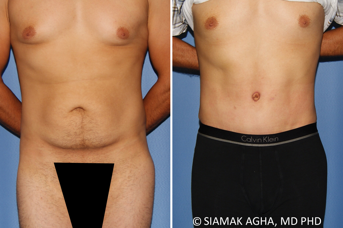Orange County Newport Beach Male Liposuction 23 Front View