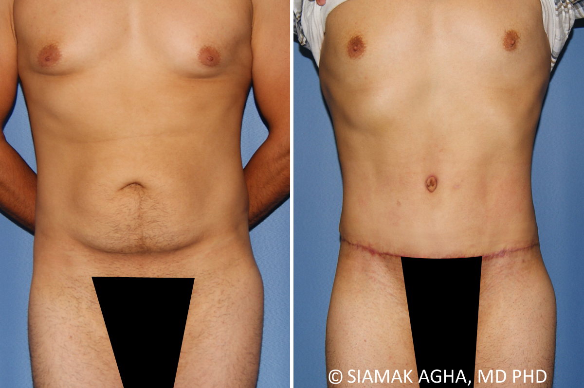 Orange County Newport Beach Liposuction Reduction 23 Front View