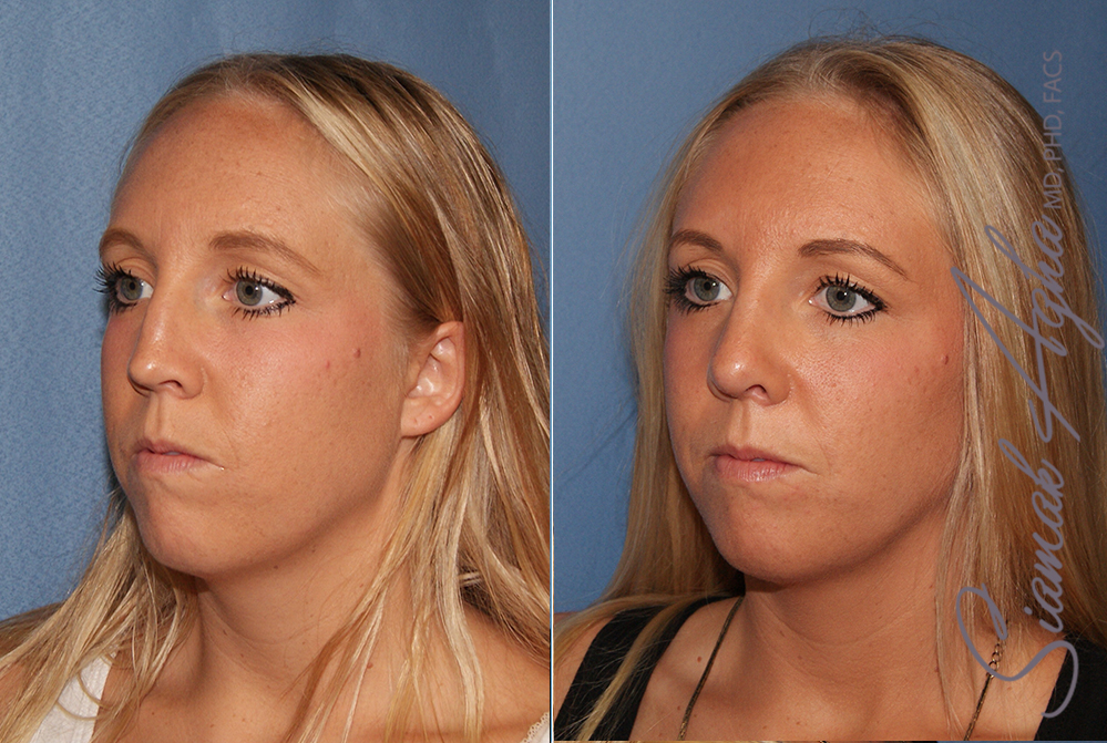 Total Body Lift Before & After Photos Patient #31 Newport