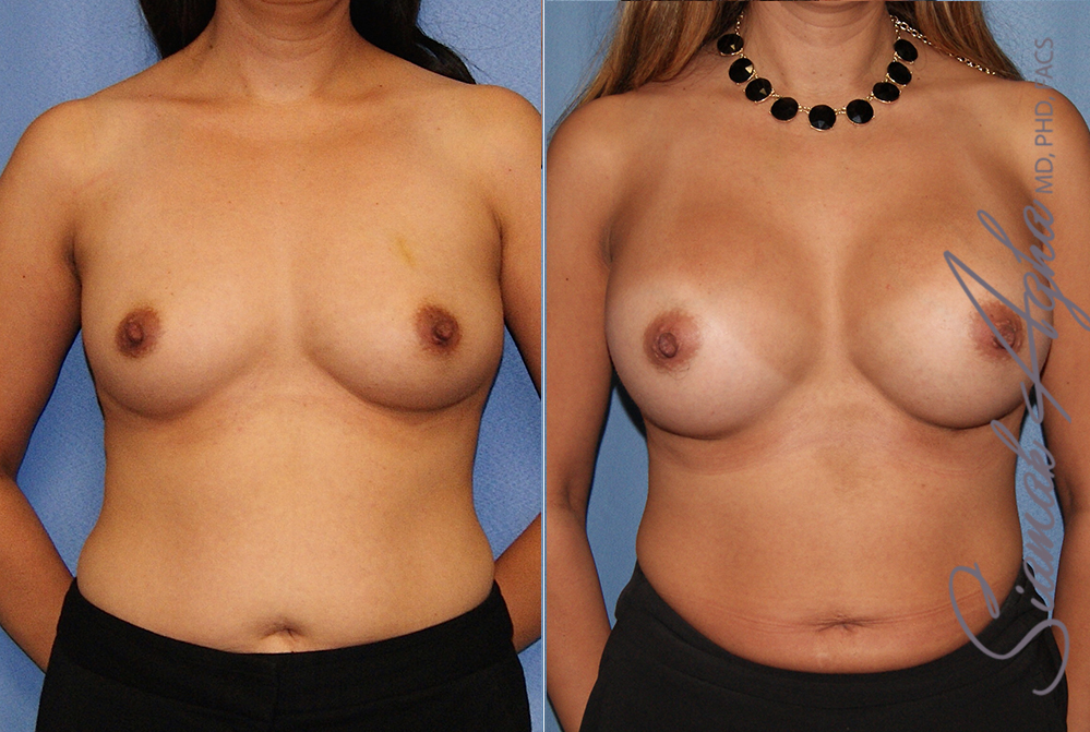 Orange County Newport Beach breast augmentation 41 Front View