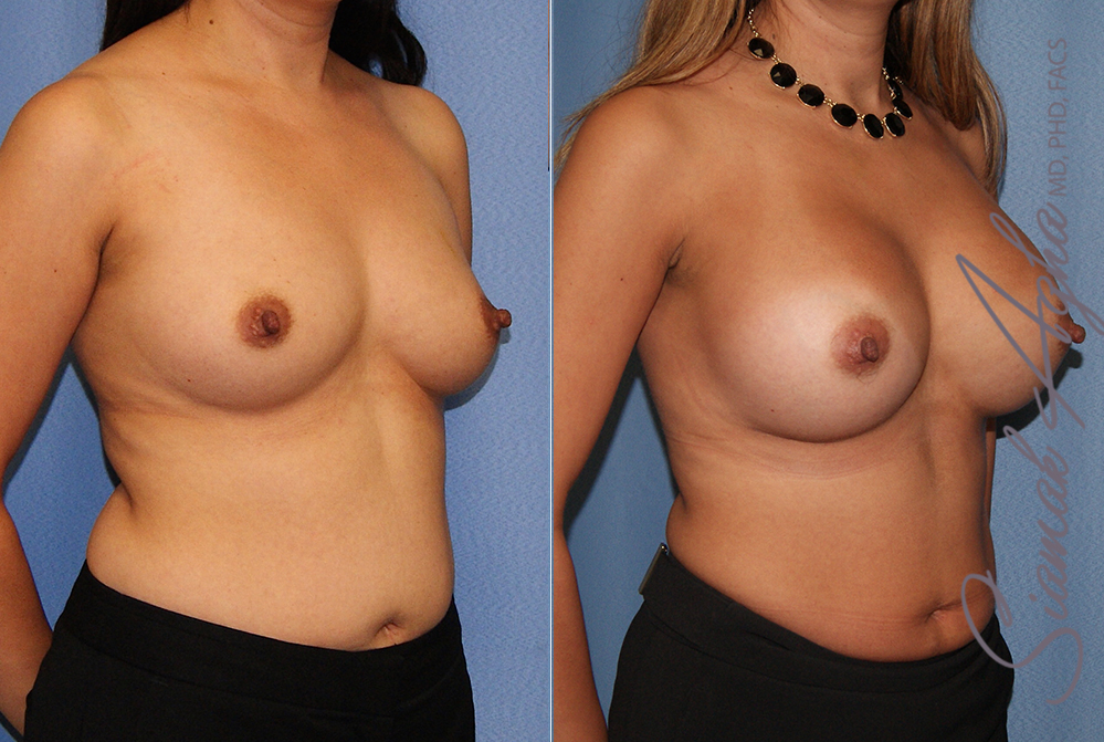 Orange County Newport Beach breast augmentation 41 Front Right View
