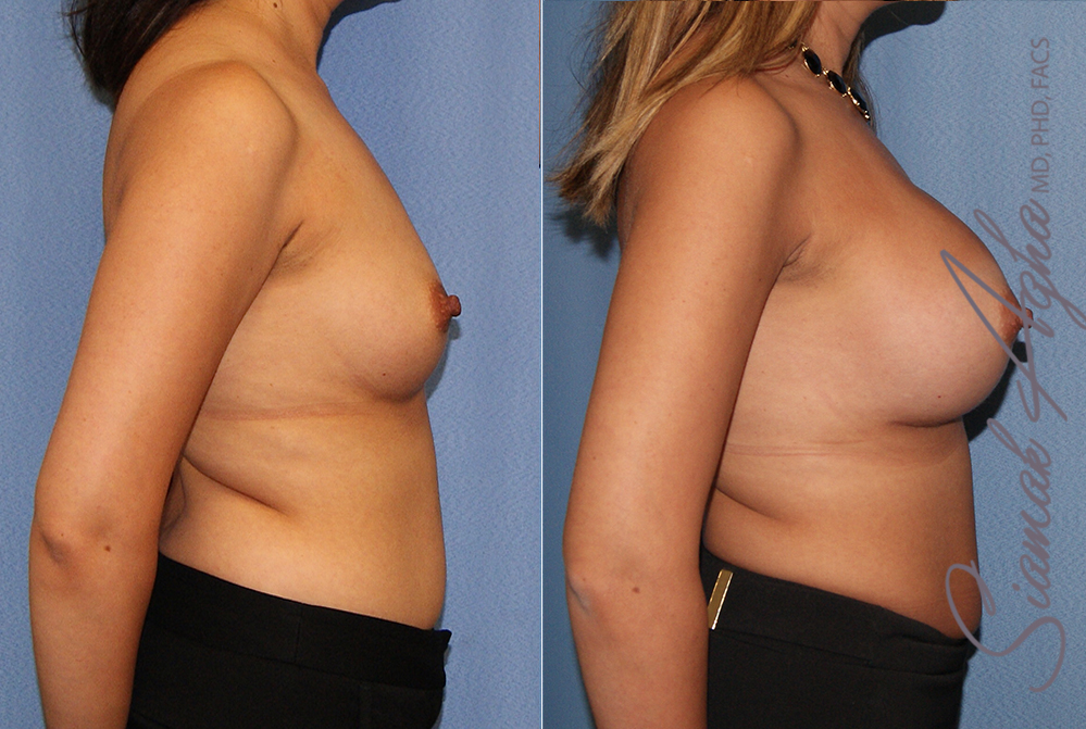 Orange County Newport Beach breast augmentation 41 Right View