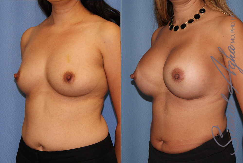 Orange County Newport Beach breast augmentation 41 Left Front View
