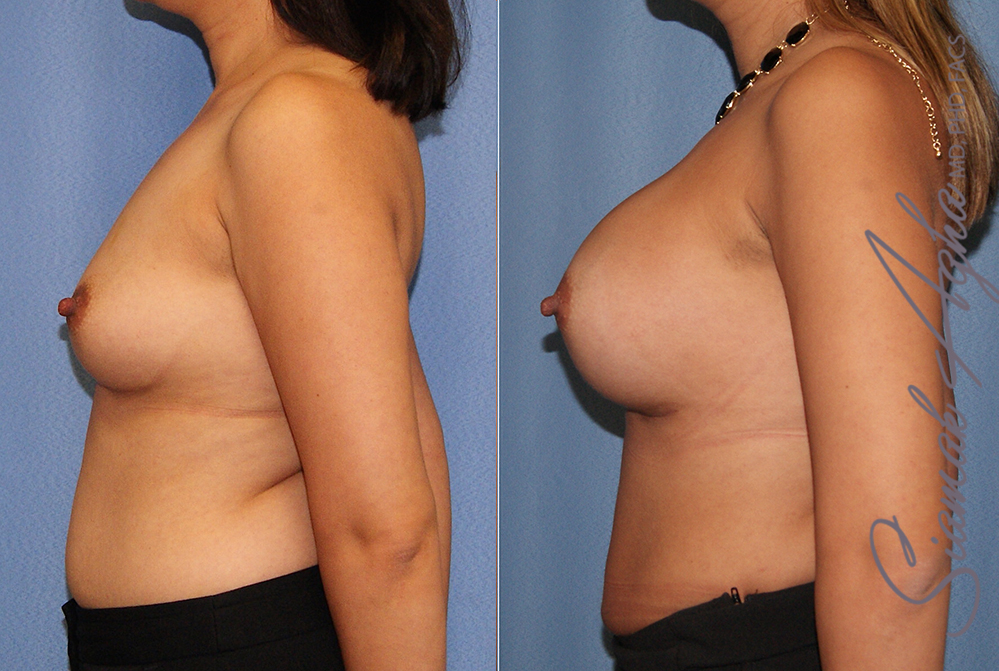 Orange County Newport Beach breast augmentation 41 Left View