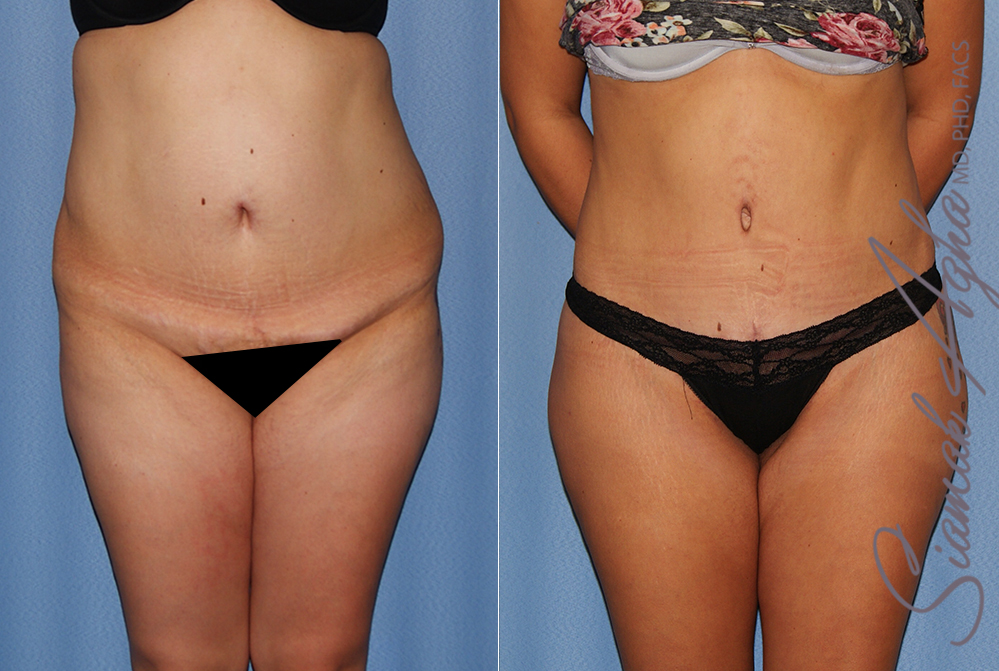 Orange County Newport Beach Tummy Tuck Patient 36