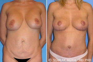 Newport Beach Breast Lift Before and After Gallery Image 5