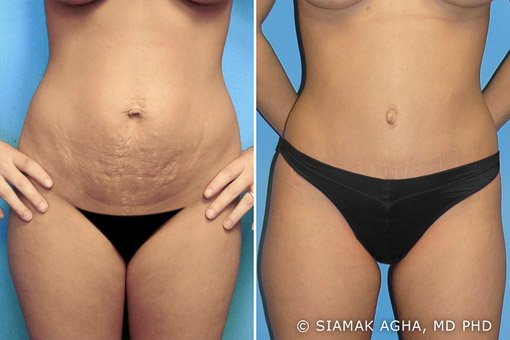 Tummy Tuck, Mommy Makeover, Breast, Brazilian Butt lift, Gynecomastia