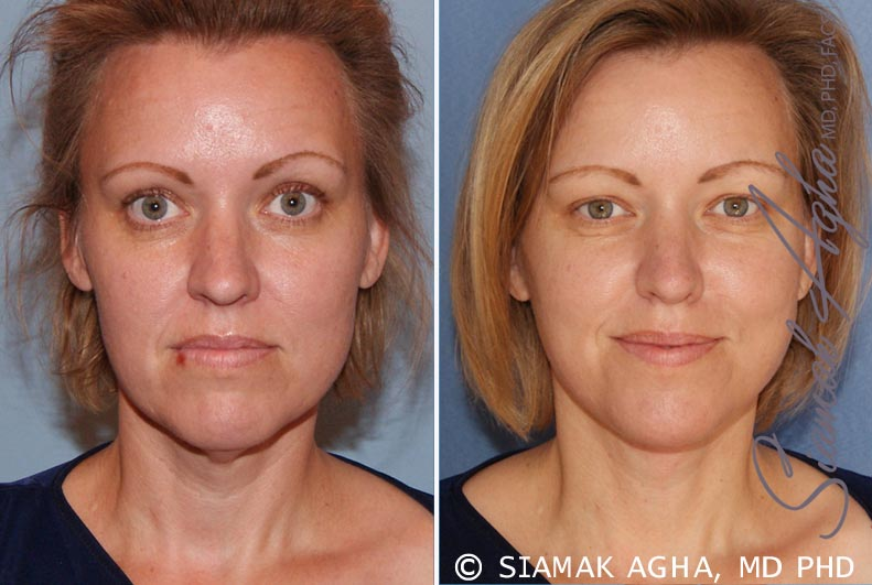 Orange County Newport Beach Facelift Patient 2