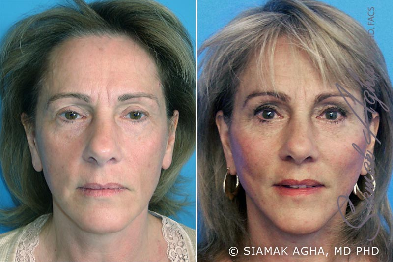 Orange County Newport Beach Facelift Patient 3