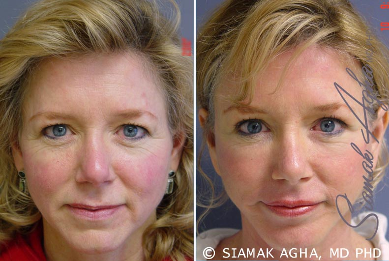 Orange County Newport Beach Facelift Patient 4