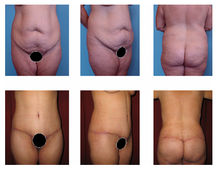 find a tummy tuck surgeon in orange county, plastic surgery after major weight loss