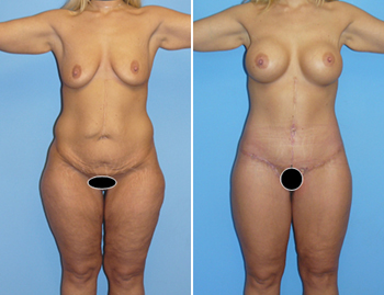 Tummy Tuck in Newport Beach