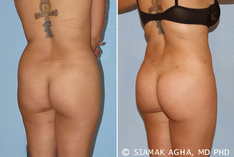 Brazilian Butt Lift in Newport Beach, also known as Buttock Lipoaugmentation