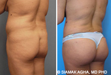 Expectations of brazillian butt lift procedures