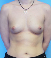 Typical Breast Augmentation Candidates Image 2