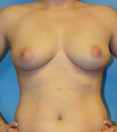 Typical Breast Augmentation Candidates Image 3