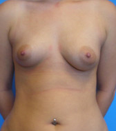 Typical Breast Augmentation Candidates Image 4