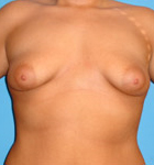 Typical Tubular Breast Patients - Image 3