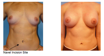 Breast Augmentation Procedure Details Image 2 - Newport Beach